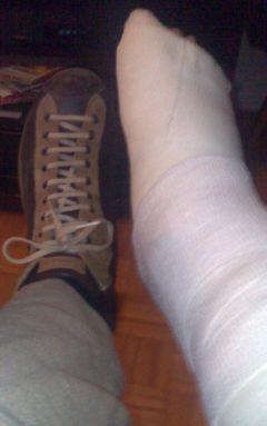 scarpe camper con una gamba rotta